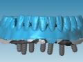 2-a-barres-hybrides-usinees-01-bur-2