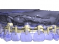1-barres-hybrides-usinees-02-photo-1