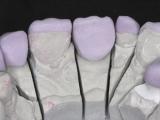 5-e-max-ceramique-03