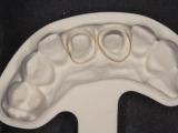 2-ceramique-e-max-05