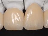 4-ceramique-e-max-06