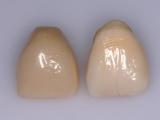 6-ceramique-e-max-07