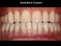 chirurgie-guidee-5-capture-ecran-2018-07-09-c3a0-11-15-00